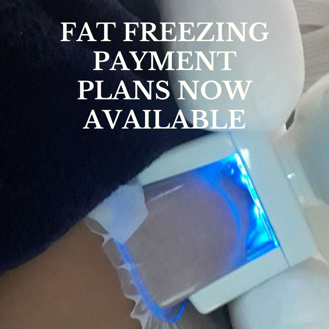 gallery/FAT FREEZING PAYMENT PLANS NOW AVAILABLE